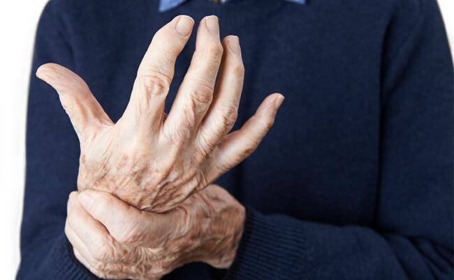 Anzeichen Arthrose